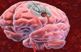 Стволовые клетки исцеляют после инсульта