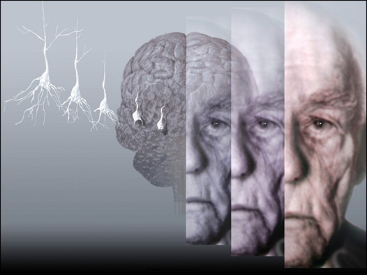По анализу крови можно предсказать болезнь Альцгеймера