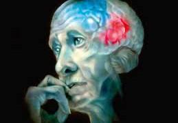 Британские ученые испытывают лекарство, останавливающее болезнь Альцгеймера