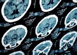 Фокальной эпилепсии предлагается нанести хемогенетический удар