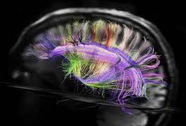 Создано новое поколение сканеров мозга