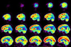 Какие основные причины деменции?