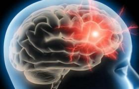 Что может изменить структуру мозга