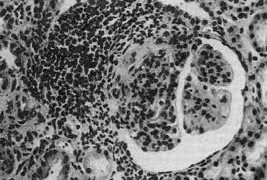 Благодаря изучению бычьих антител могут быть созданы гормональные препараты длительного действия