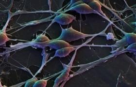 Обнаружены 7 неизвестных клеток, которые могут помочь в лечении рассеянного склероза