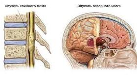 Лечение опухолей мозга – уже реальность