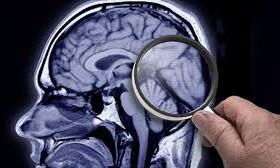 Подагра снижает риск развития болезни Альцгеймера
