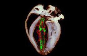 Сбои в энергетических «фабриках» клеток вызывают болезни сердца и Паркинсона