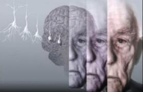 6 вопросов для домашней диагностики болезни Альцгеймера
