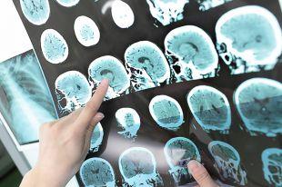 Ученые доказали, что любовь влияет на работу мозга