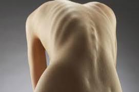 Ученые назвали неврологические причины анорексии