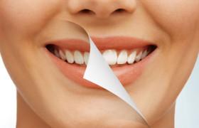 Отбеливание. Как отбелить зубы в домашних условиях с применением натуральных средств?