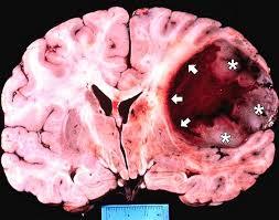 Опухоли головного мозга: виды