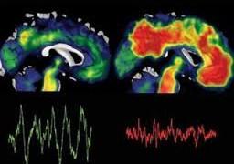 Ученые раскрыли секрет, как по одному рисунку диагностировать болезни Альцгеймера и Паркинсона
