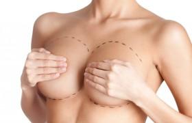 Какую пользу приносит маммопластика?
