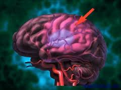 Внутримозговое кровоизлияние: причины, симптомы, диагностика, лечение
