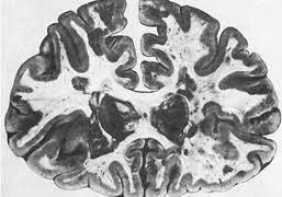 Патоморфология при болезни Альцгеймера