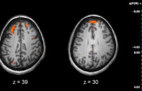 Изменения в сетчатке могут выявить патологию мозга при шизофрении