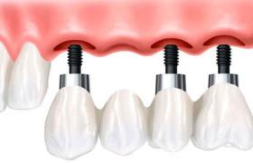 Зубные имплантаты для пожилых людей — рекомендации
