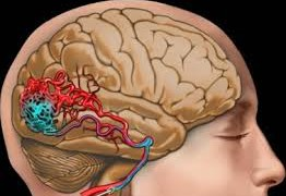 Что такое атеросклероз сосудов головного мозга?