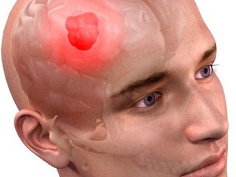 Ученые нашли способ, чтобы нарушить регенерацию опухоли головного мозга