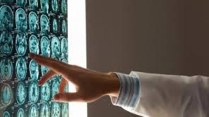 Уникальный протез поможет людям с потерей памяти