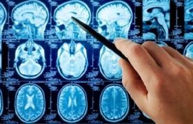 Антидепрессанты влияют на структуру мозга