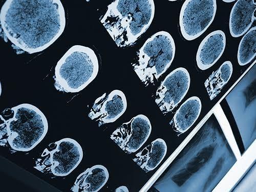 Предложен новый способ глубокой визуализации головного мозга
