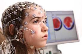 Функциональная активность мозга (ЭЭГ) при болезни Альцгеймера
