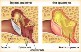 Болит в ухо попала вода, что делать? » Домашняя копилка 10