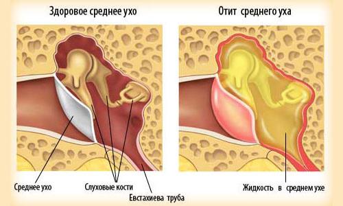 Что делать, если попала вода в ухо?
