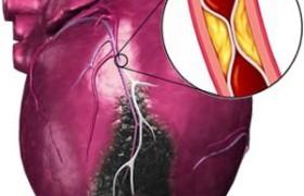 Инфаркт миокарда: основные симптомы и первая помощь