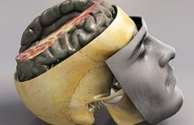У пациентов с черепно-мозговой травмой исследователи обнаружили признаки быстрого старения мозга