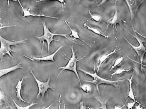 Генетические изменения в костных клетках провоцируют развитие лейкемии