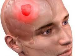 Растительный экстракт борется с опухолью головного мозга