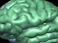 Психоз может вызвать реакцию антител на белок мозга