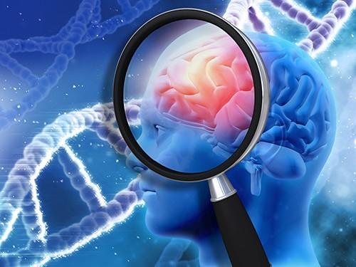 Обнаружена причина разрушения синапсов в головном мозге при болезни Альцгеймера