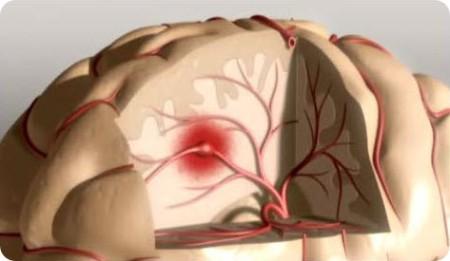 УЗИ как часть профилактики инсультов