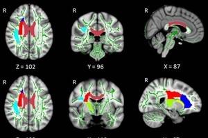Ученые рассказали, как бессонница влияет на мозг