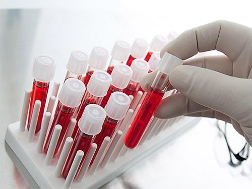 Болезнь Паркинсона можно будет обнаружить по анализу крови