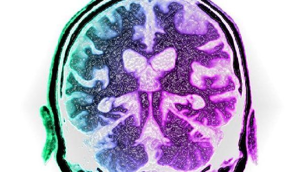 Ученые разгадали тайну происхождения болезни Альцгеймера