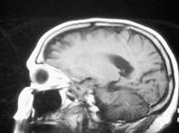Мозговые аномалии — истинная причина переедания и ожирения