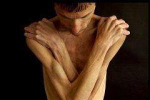 Анорексия – проблема мужчин?