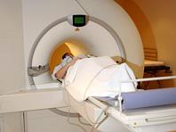 Искусственный интеллект подскажет, кому грозит болезнь Альцгеймера