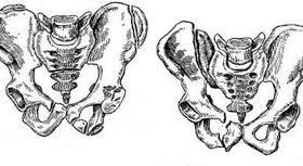 Переломы таза костей