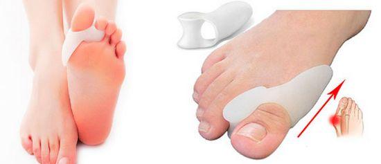 Современные методики для устранения косточки на ноге, лечение с использование новейшей ортопедической шины