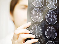 Новый метод поможет людям с повреждениями мозга