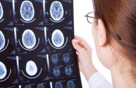 Эпилепсию станут лечить прицельно