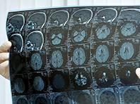 Компьютер способен выявить рак мозга