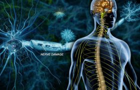 Инфекционные заболевания нервов